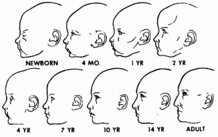 Forma capului la bebelusi forum